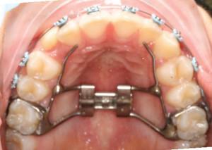 Treatment Progress 1