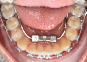 Treatment Progress 2